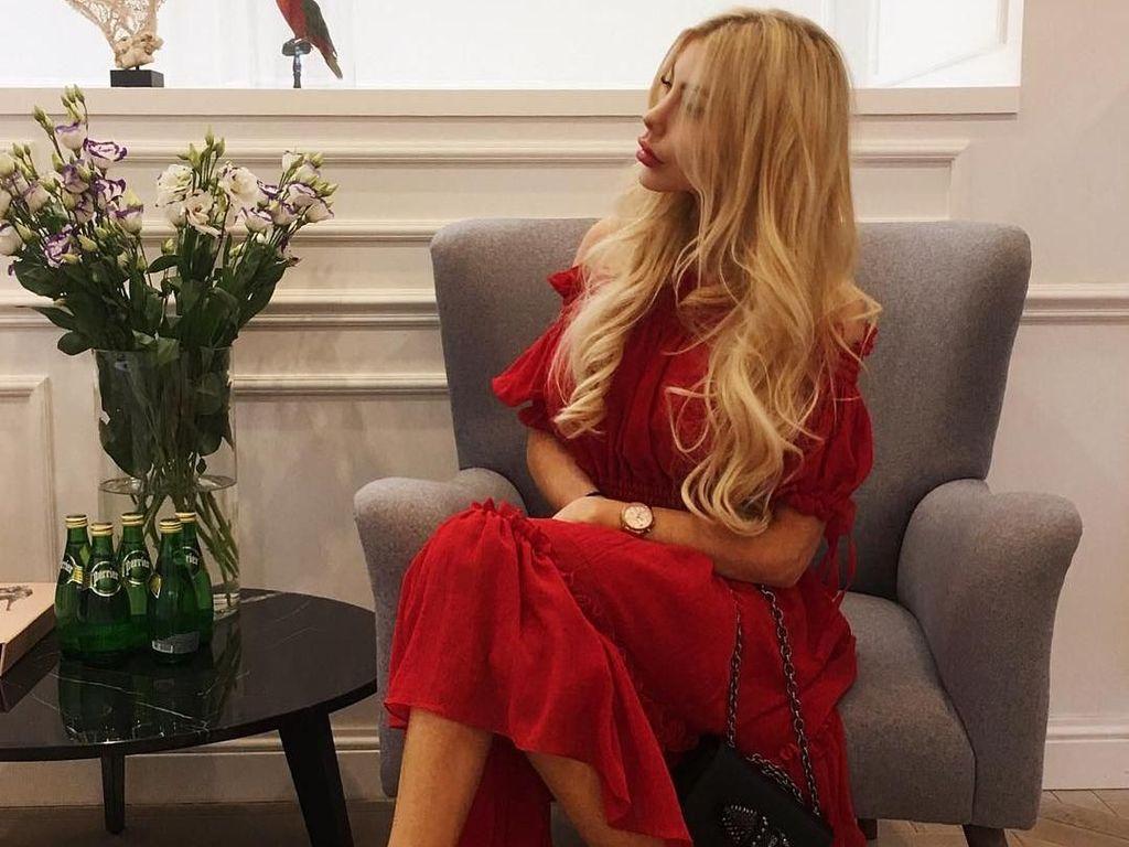 Foto: Ini Anella, Wanita yang Terobsesi Jadi Barbie Hidup Pertama di Dunia