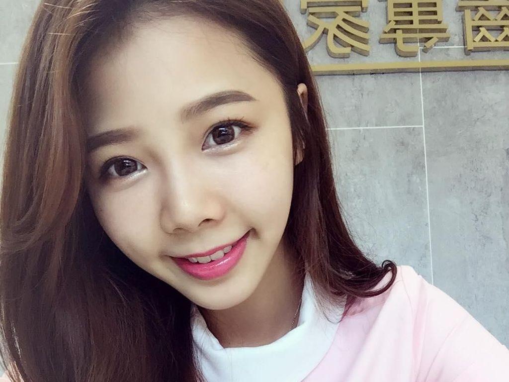 Foto: Pesona Ningxuan Chen, Asisten Dokter Gigi Cantik yang Viral