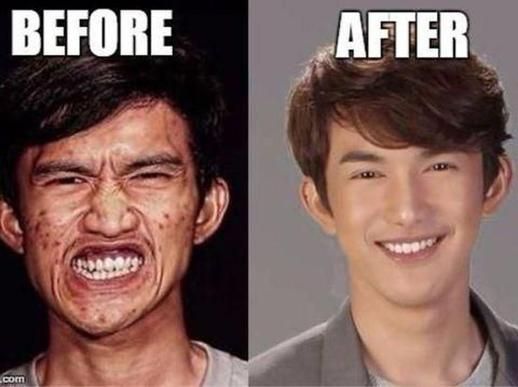 Potret 7 Pria Biasa yang Jadi Ganteng Mirip Bintang K-Pop Usai Oplas