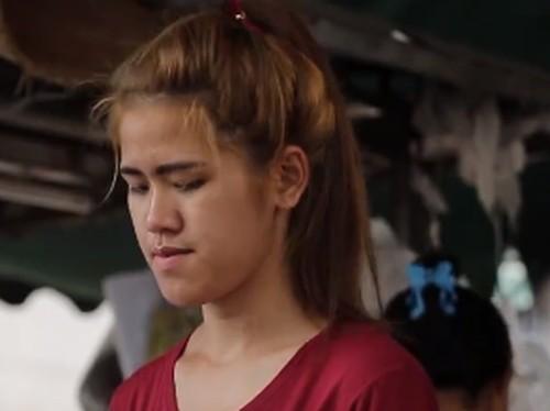 Pernah Dibully Mirip Penyihir, Tranformasi Wanita Oplas Ini Bikin Terpana