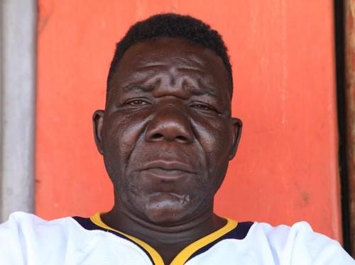 William Masvinu, Pria Terjelek yang Menangkan Kontes Zimbabwe Mr Ugly 2017