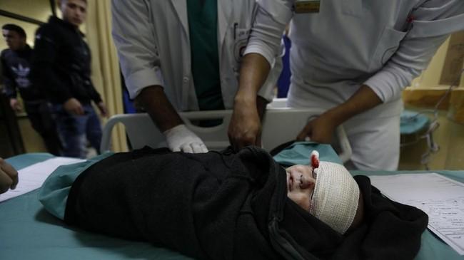 Ketegangan bukan hanya terjadi di Gaza atau Palestina, tapi juga di negara-negara muslim yang memprotes kebijakan kontroversial Donald Trump tersebut. Aksi demonstrasi pun terjadi di sejumlah negara. (AFP PHOTO / MOHAMMED ABED)