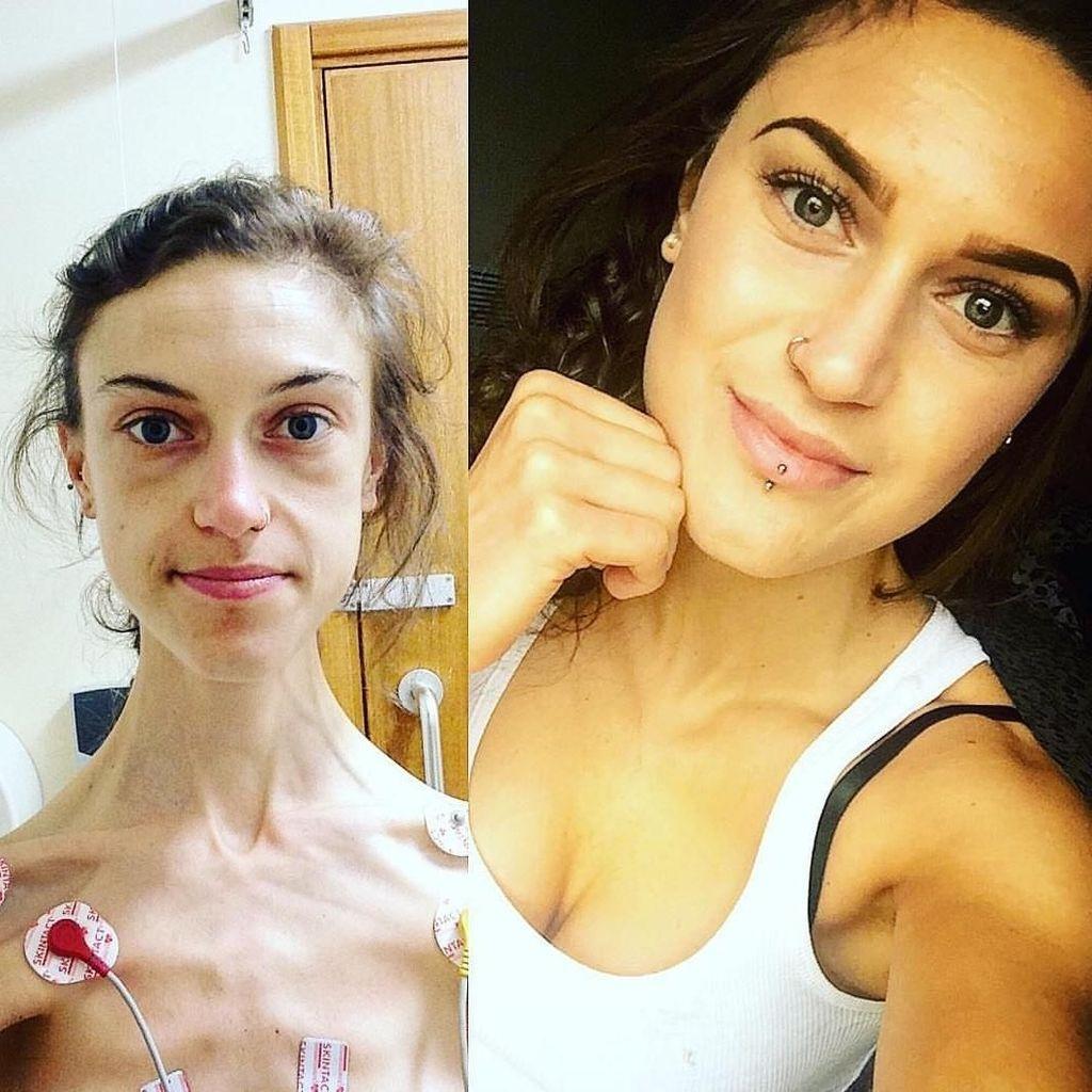Potret Perjuangan Wanita yang Anoreksia Karena Takut Menjomblo