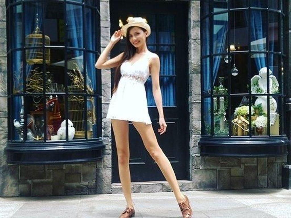 Foto Wanita Cantik dengan Kaki yang Panjang Ini Curi Perhatian Netizen
