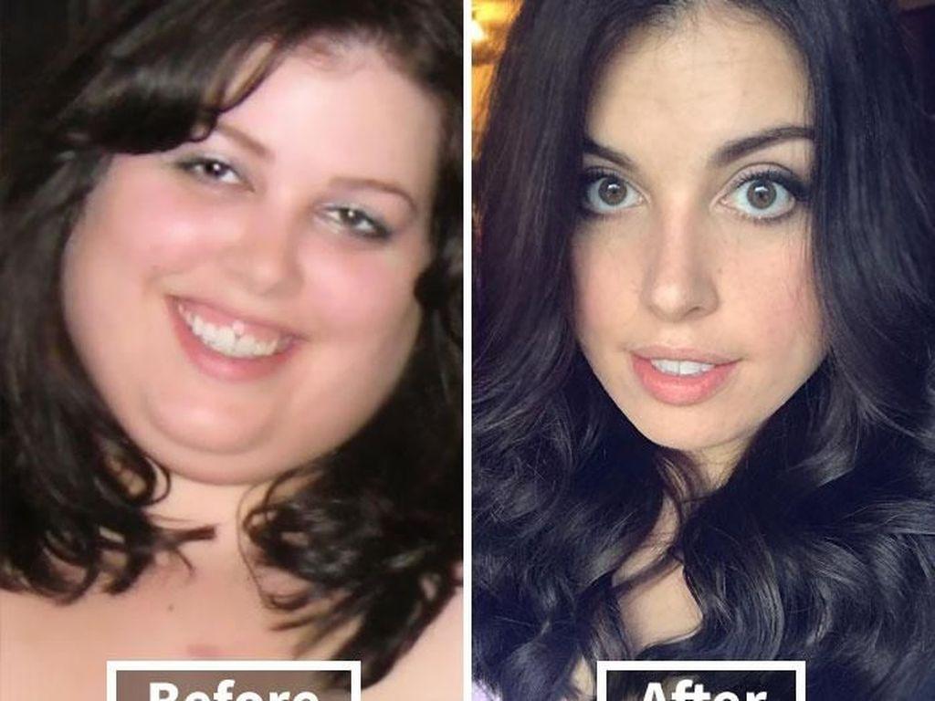 Drastis! Deretan Foto Selfie Sebelum dan Setelah Diet