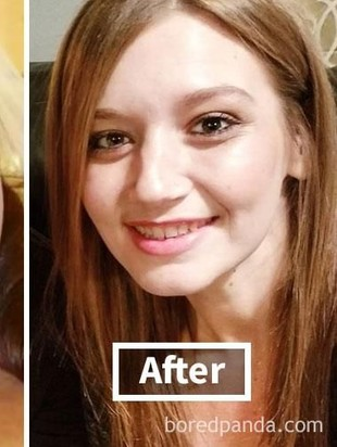 15 Transformasi Wajah Wanita Pasca Berat Badan Turun Drastis,  Beda Banget!
