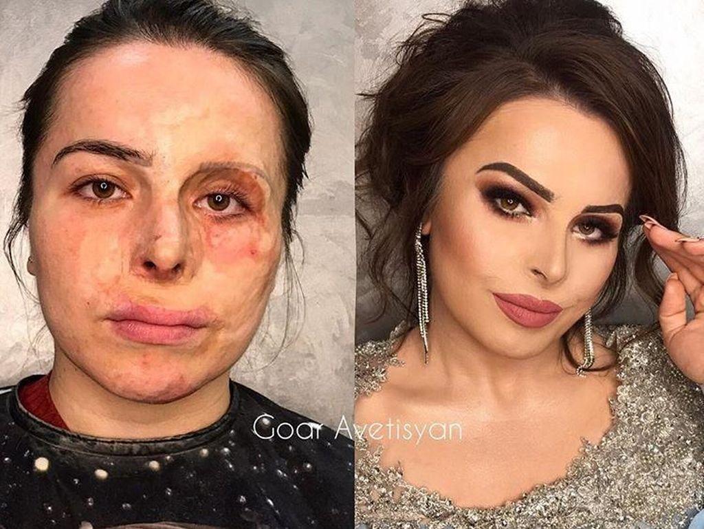 Foto: Transformasi Makeup Dramatis Penderita Kanker Hingga Korban Luka Bakar