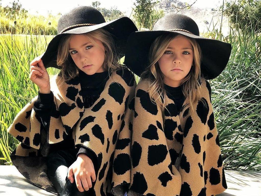 Foto: Kembar Identik Ini Disebut Sebagai Anak Tercantik di Dunia