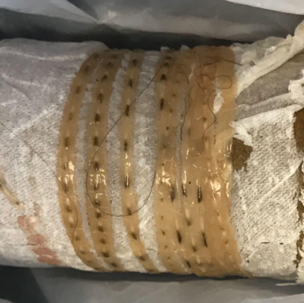 Cacing Pita 1,7 Meter Keluar dari Tubuh Pria Penggemar Sushi