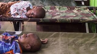 FOTO: Gizi Buruk di Tanah Asmat