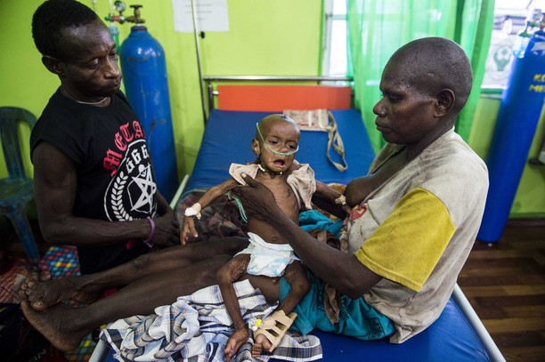 Miris, Begini Kondisi Anak Penderita Gizi Buruk di Papua