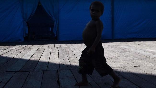 Sementara Presiden Joko Widodo telah memintapemerintah daerah untuk fokus dan bekerja cepat menangani campak dan gizi buruk yang kembali melanda anak-anak suku Asmat di Papua. (Antara/M Agung Rajasa)