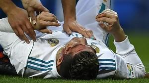 FOTO: Ronaldo Berdarah di Kemenangan Real Madrid