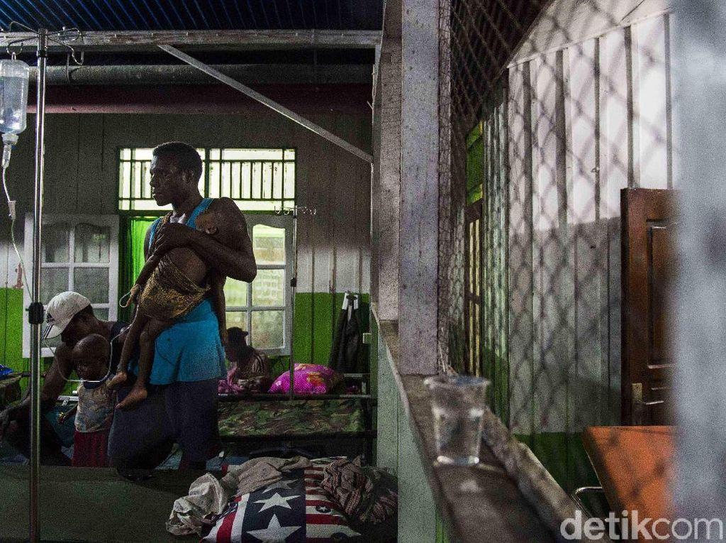 Korban gizi buruk dari Kabupaten Asmat, Papua, terus bertambah. Korban adalah anak-anak. M Agung Rajasa/Antara Foto.