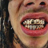 Tak sedikit pula kalangan selebritis yang menggunakan gigi emas. Foto: Instagram