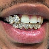 Gigi merupakan bagian tubuh yang bisa lepas sewaktu-waktu. Entah lepas karena kecelakaan, faktor kesehatan, ataupun cedera. Foto: Instagram