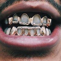 Selain berfungsi untuk mengganti gigi yang tanggal, tampaknya gigi emas kini sudah menjadi tren. Foto: Instagram
