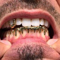 Pasalnya, gigi emas juga bisa dijadikan sebagai aksesoris untuk gaya. Foto: Instagram