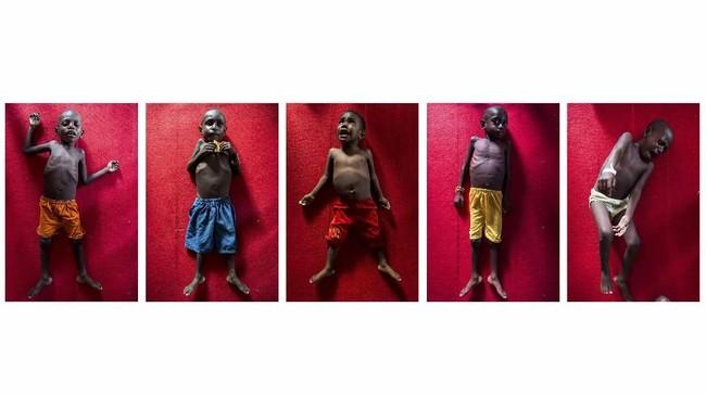 Foto kolase profil anak-anak asal Distrik Jetsy, Kabupaten Asmat, Papua, Rabu (24/1). Kondisi fisik anak-anak tersebut kurus dan perut buncit karena mengidap penyakit malaria, campak dan gizi buruk. (ANTARA FOTO/M Agung Rajasa/ama/18)