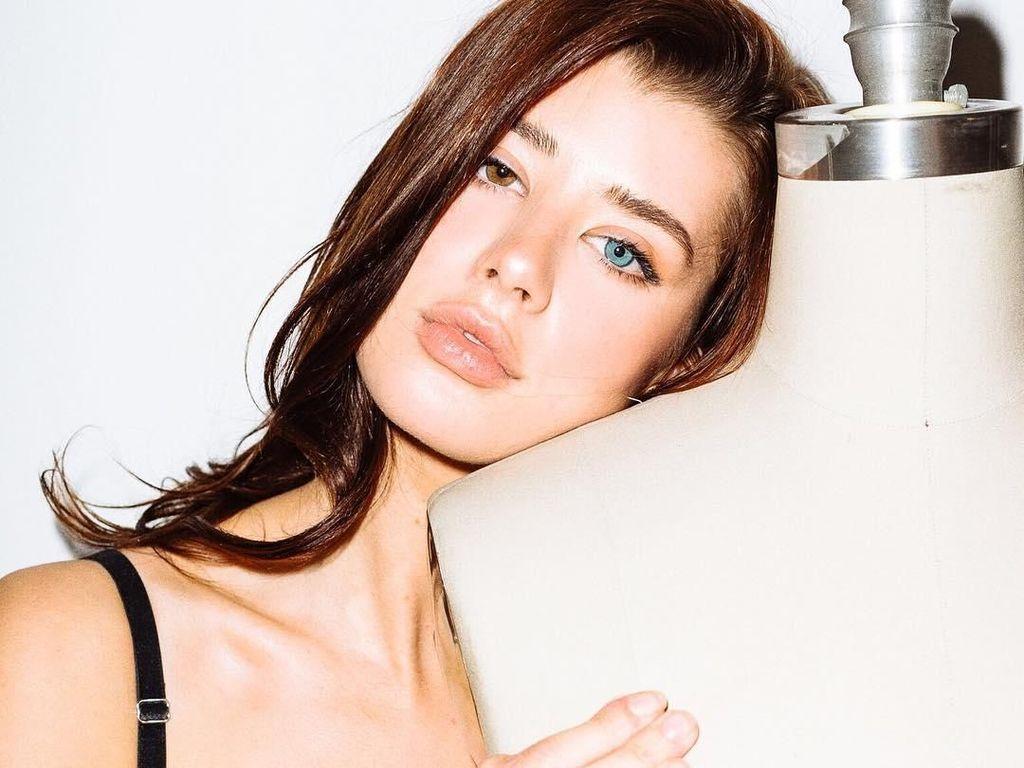 Foto: Model Seksi Ini Punya Mata Indah Nan Unik Warna Biru & Coklat