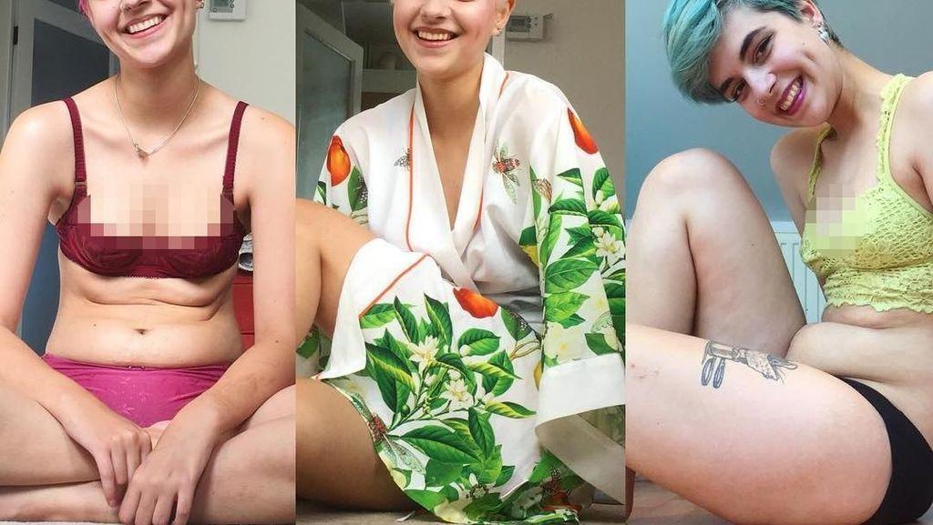 Connie Inglis, Mantan Pengidap Anoreksia yang Bangkit Pulihkan Berat Badan