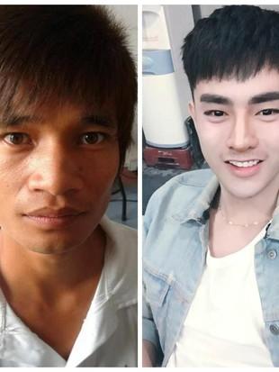 Terpana! Potret Transformasi Pria Biasa Operasi Plastik Mirip Idol Korea