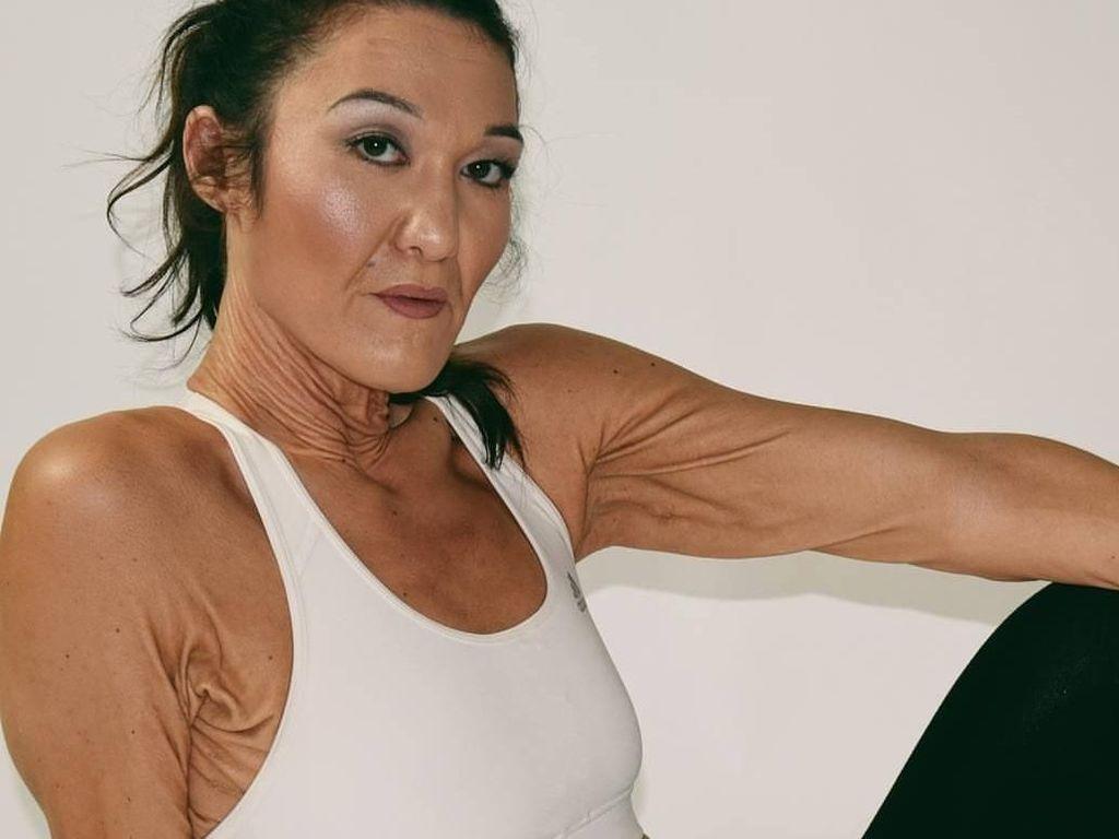 Cerita Sara, Model Berumur 26 Tahun yang Terperangkap di Tubuh Lansia