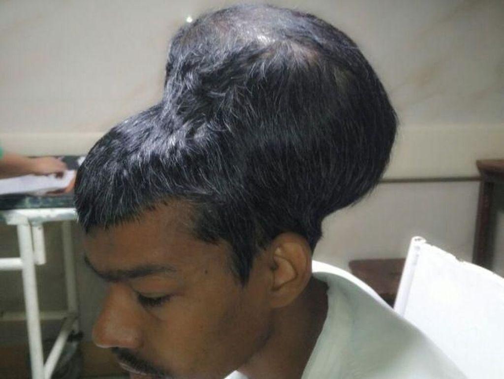 Tumor Otak Terbesar di Dunia Berhasil Diangkat Dokter India