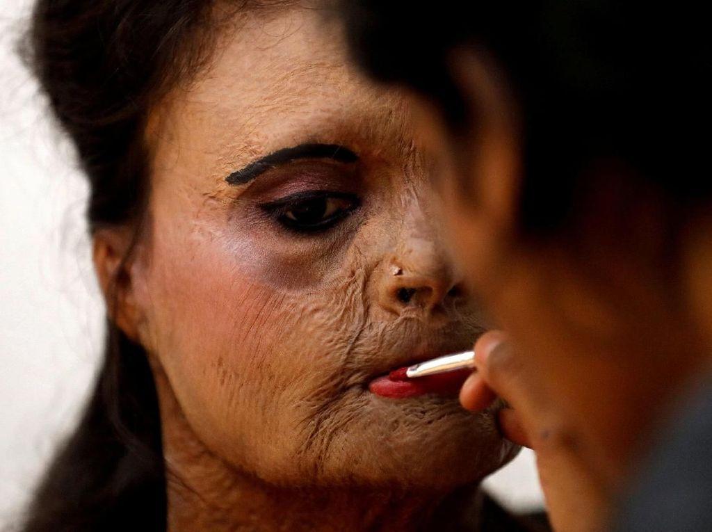 Potret Inspiratif Saat Wanita Korban Siraman Air Keras Jadi Model Catwalk