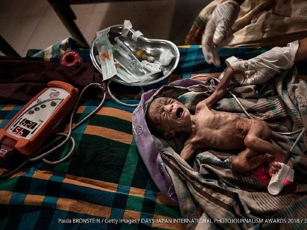 Salah satu karyanya yang menyentuh potret bayi prematur yang berusia kurang dari 15 hari yang akan dirawar di Unit Neonatal Oediatruk di Klinik MSF Kutupalong, Bazar Bangladesh. Foto: Days Japan Internasional Photojournalism Awards 2018