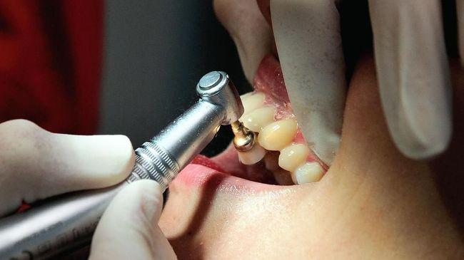 Kuteks Gigi yang Memberi Warna Sama dengan Jari Kuku