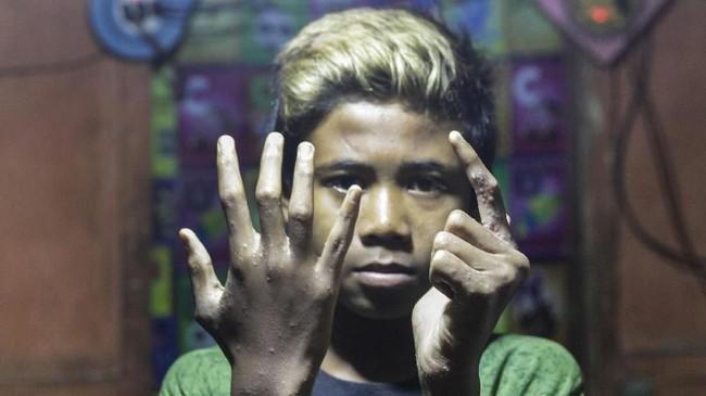 Ganjar, 13, menderita penyakit kulit karena menggunakan air Sungai Citarum yang sudah terkontaminasi limbah pabrik untuk mandi sehari-hari di Desa Sukamaju, Majalaya, Jawa Barat. (Anadolu Agency/Eko Siswono)