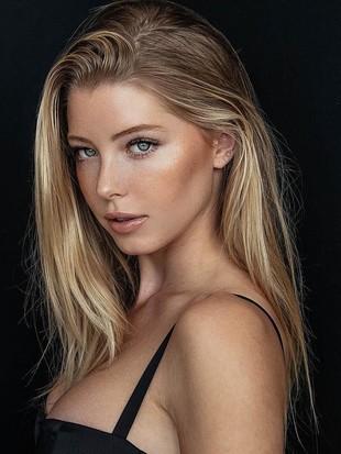 Si Cantik Baskin Champ, Miss Alabama yang Digosipkan dengan Justin Bieber