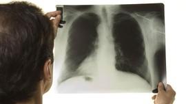 Perjuangan Binsar Melawan TB MDR yang Dideritanya