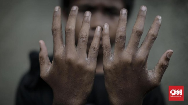 Salah satunya dialami oleh remaja Ganjar asal Majalaya yang berusia 13 tahun. Dia menyatakan pada Sabtu (31/3) dirinya menderita penyakit kulit karena menggunakan air Sungai Citarum yang sudah terkontaminas. (CNNIndonesia/Adhi Wicaksono).