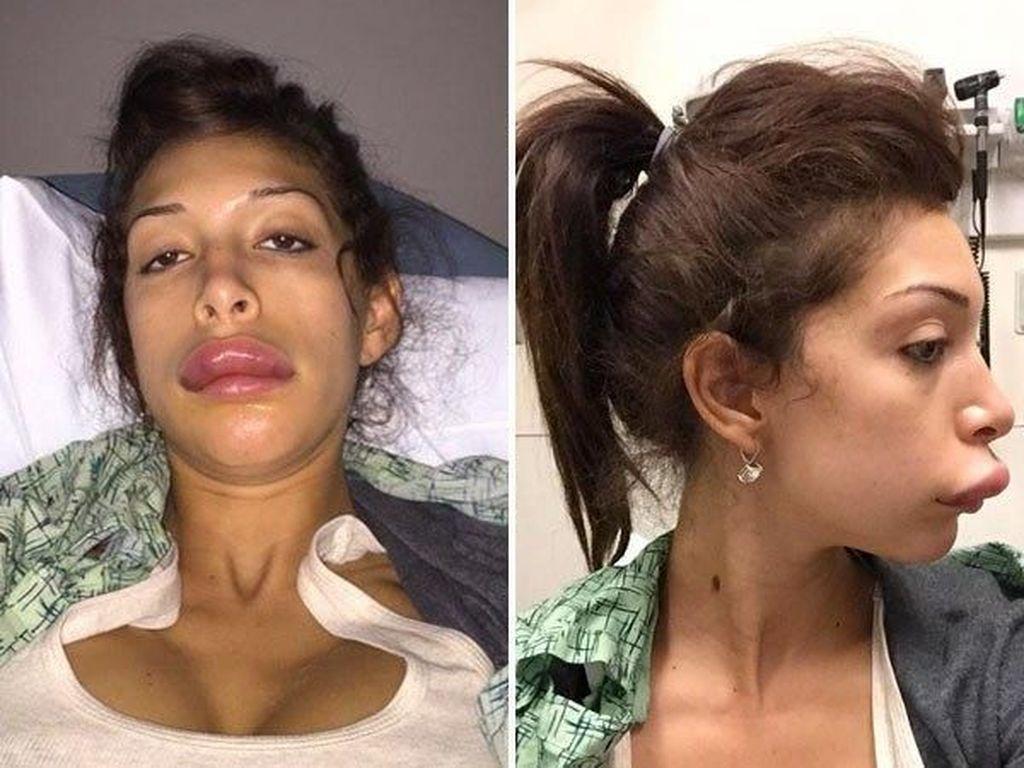 Ini Sosok Wanita yang Operasi Miss V Rp 110 Juta