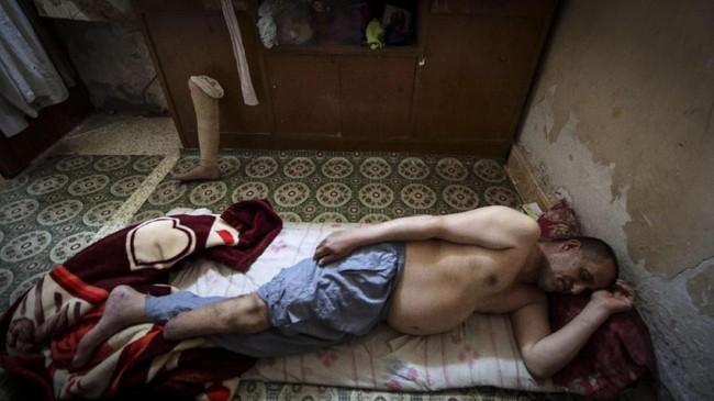 Sisanya atau sekitar 60 persen para pemesan anggota tubuh palsu adalah korban perang atau kehilangan anggota tubuh terkait perang. Termasuk warga desa Al-Bitran.(REUTERS/Essam Al-Sudani)