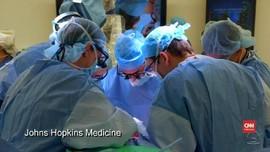 VIDEO: Transplantasi Penis Pertama di Dunia