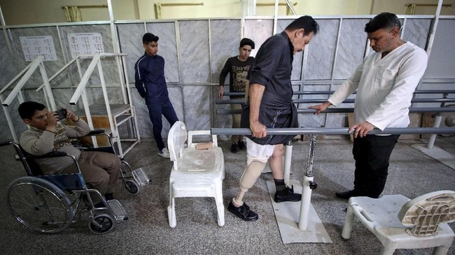 Tiap bulan bengkel itu membuat 50 bagian tubuh palsu. Sepertiga pasien kehilangan kaki karena diabetes, 10 persen akibat kecelakaan. (REUTERS/Essam Al-Sudani)