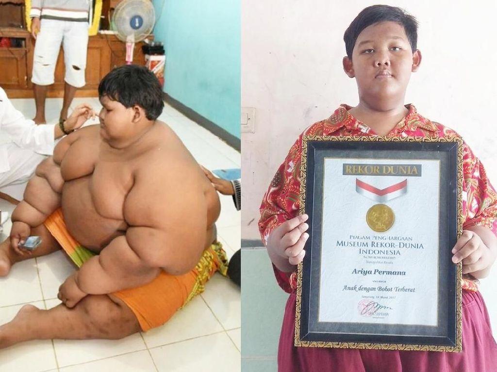 Bocah asal Karawang yang pernah dinobatkan MURI jadi anak terberat di dunia, Ariya Permana, turun 80 kg. Ariya pun bertekad untuk puasa penuh di bulan Ramadan nanti. (Foto: Dok. detikcom)