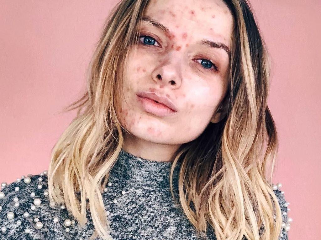 Wanita Ini Diejek Menjijikan, Tapi Jika Sudah Makeup Bikin Kamu Minder