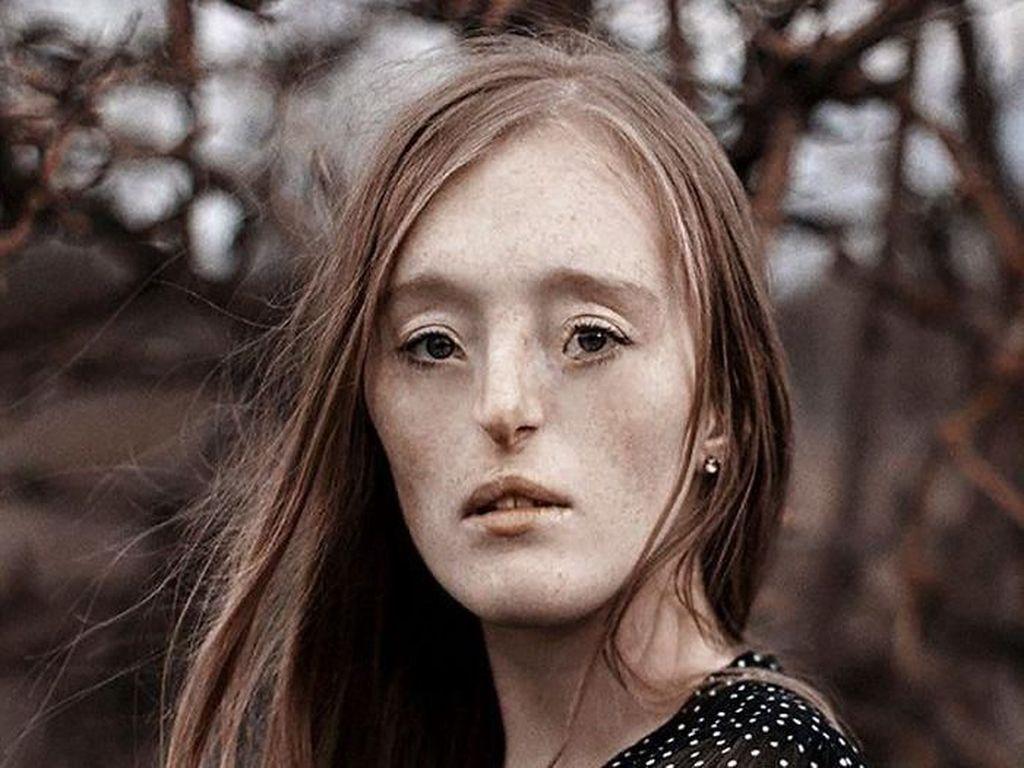 Tersentuh Foto-foto Indah Wanita yang Terlahir dengan Bibir Sumbing
