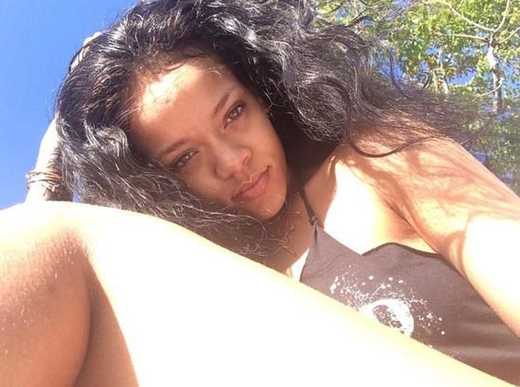 Foto: Bulu Kaki Rihanna yang Bikin Netizen Gagal Fokus