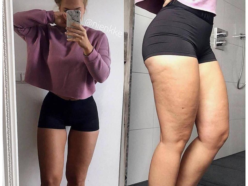 10 Wanita Ini Buktikan Tubuh Seksi di Instagram Tak Sesempurna Kelihatannya
