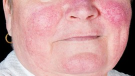 Faktor Hormonal Buat Lupus Lebih Berisiko pada Wanita
