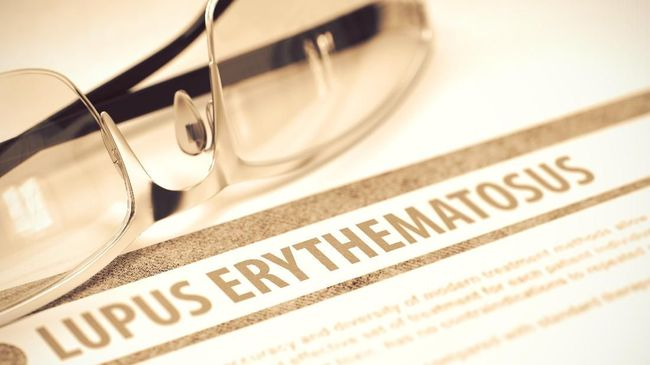 Mengenal Penyakit Lupus: Gejala, Pengobatan dan Pencegahannya
