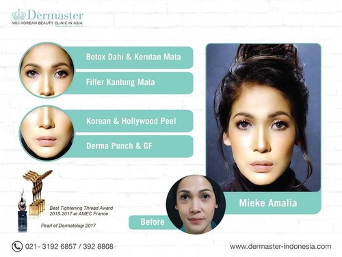 Seperti Ini Wajah 12 Artis Indonesia yang Filler dan Botox Bibir Hingga Dagu