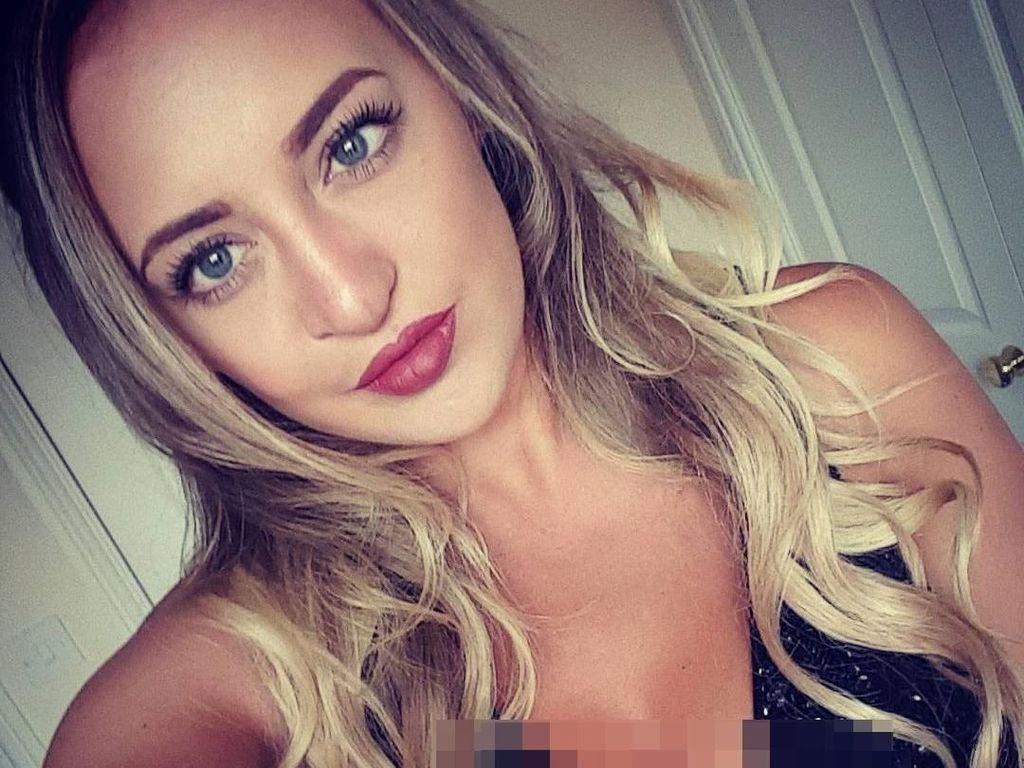 Penampilan Cantik Wanita yang Oplas Pasca Di-bully Karena Bibir Sumbing
