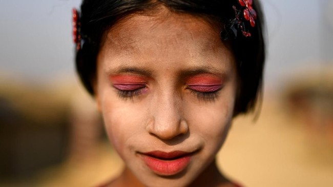 Sinar matahari yang menyengat terasa membakar kulit dan menyebabkan banyak masalah. Krim tabir surya pun memegang peranan penting untuk menghalau sinar yang membakar.(REUTERS/Clodagh Kilcoyne)
