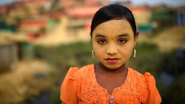 Seorang anak Rohingya berusia sembilan tahun Zannat Ara mengungkapkan bahwa pasta tabir surya tersebut melindunginya dari serangan serangga di kamp pengungsian.(REUTERS/Clodagh Kilcoyne)